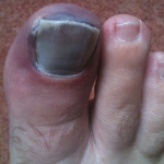 Foot of a Dancer with Black Toe