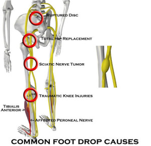 Common Foot Drop Causes