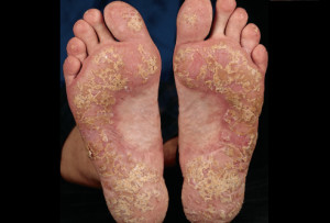 Psoriasis on the soles of the feet
