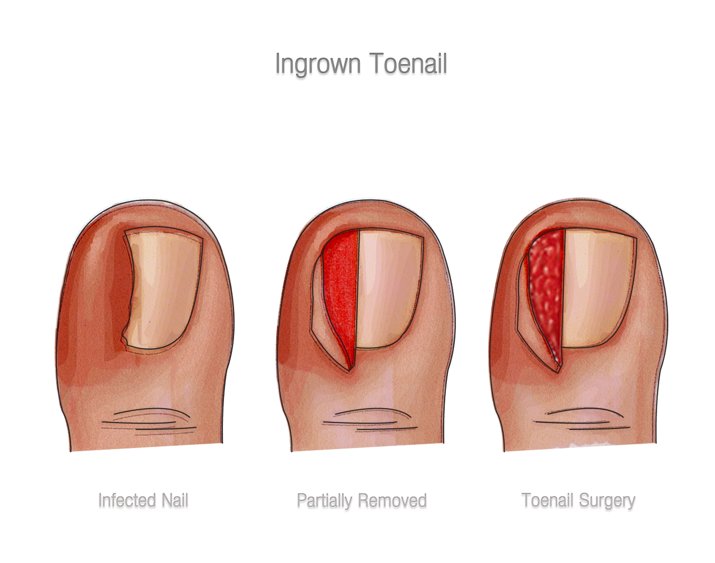 Treating Ingrown Toenails…Here are the options - Almawi Limited The ...