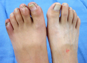 Feet affected by Buerger's Disease