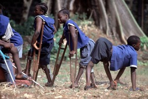 Children with polio-related disabilities