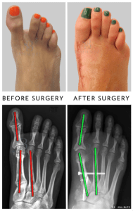 Hallux Varus -Before and after surgery