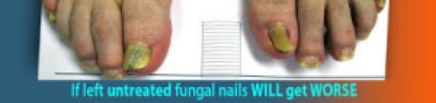 If left untreated fungal nails WILL get worse