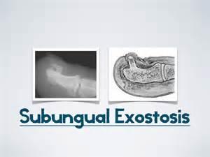 Subungal Exostosis