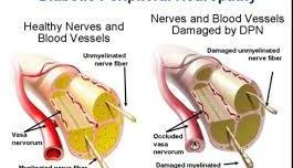 Diabetic Peripheral Neuropathy causes Cramps