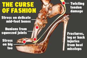 High Heels - The Curse of Fashion