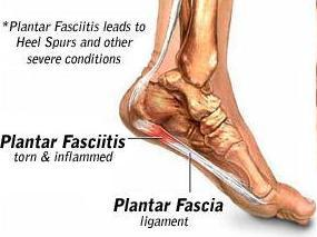 Plantar Fasciitis & Heel Spurs