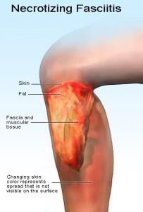 Necrotizing fasciitis - Complication of Cellulitis