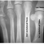 Bone Structure aligned with Morton's Toe