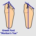 Greek Foot or Morton's Toe
