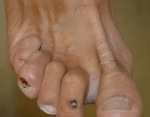 Myxoid Cysts on more than one toe