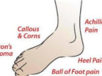 Some Foot Issues associated with Morton's Toe