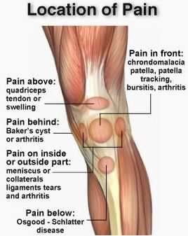 Knee anatomy with bursa choice image how to guide and refrence for Exterior knee pain