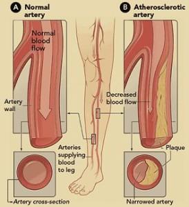 Normal vs Blocked Arteries