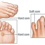 Hard and Soft Corns