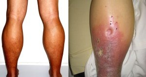 Skin Changes due to Venous Insufficiency