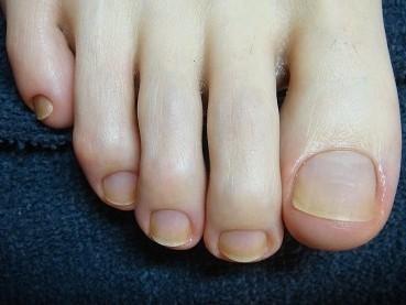 足の深爪自立矯正の効果画像