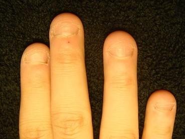 深爪矯正の効果が分かる爪の変化画像