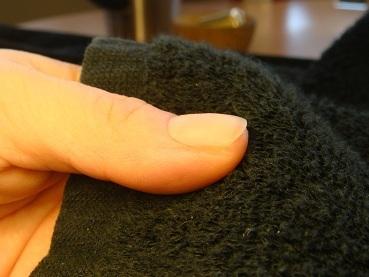 爪がデコボコに生える爪の病気改善