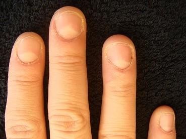深爪を綺麗な爪にしたい深爪矯正の変化画像