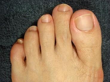 足の深爪自立矯正の変化画像