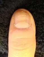 深爪自立矯正と爪の病気を同時に解決 深爪自立矯正変化画像