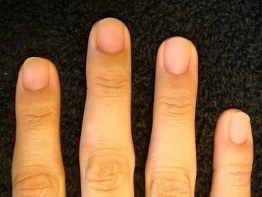 小さい爪が大きく縦長の爪に変化するカイナメソッドの深爪自立矯正