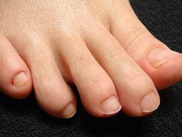 足の深爪自立矯正で爪の長さが約二倍に!