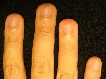 欠けていた爪も綺麗に生え揃うカイナメソッドの深爪自立矯正