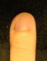 欠けていた爪も綺麗に生え揃うカイナメソッドの深爪矯正