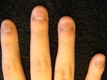 爪のピンクの部分が伸びる深爪自立矯正の効果