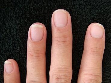 カイナメソッドの深爪矯正は爪も指も変化する