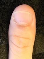爪噛み癖を治してジェルネイルを楽しもう