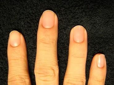 男性も短い爪を綺麗な自爪にしたいから自立矯正