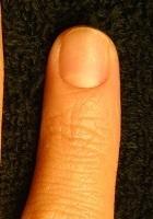 爪のデコボコが改善された変化画像