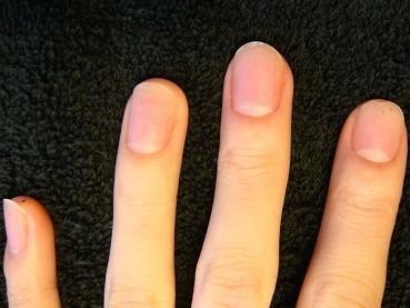 ネイルチップで短い爪を隠さずに綺麗な自爪に治したい自立矯正