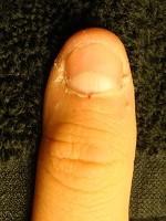 深爪自立矯正卒業 爪の変化画像 爪噛み像