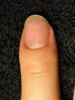 1本からOKの深爪矯正の爪の変化画像像