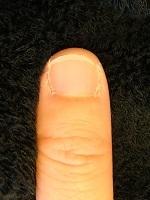深爪矯正の効果