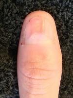 男性の爪のデコボコ矯正の変化画像