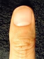深爪矯正で深爪から美爪へ