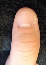 見て実感の深爪矯正の成果
