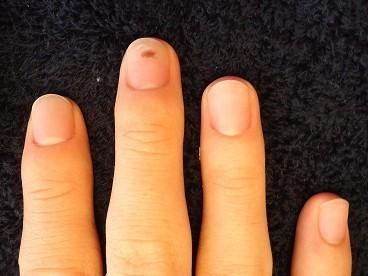 男性のお客様の爪はこんなに変わります!