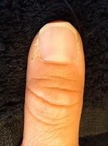 深爪自立矯正 爪の変化画像