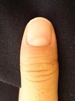 深爪自立矯正卒業 爪の変化画像