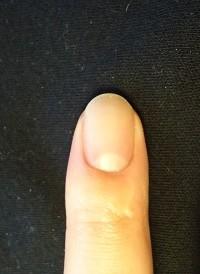 爪のでこぼこ爪をむしる