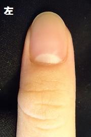 デコボコな爪
