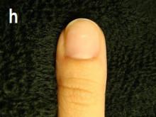 私の爪治りますか