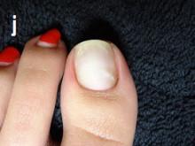 第三弾あなたの爪の症状深爪爪の病気